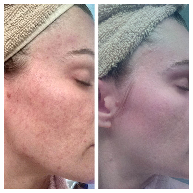 Nerium, Nerium skincare, how to use Nerium, Nerium results, before and after using Nerium, staying young, young skin, younger looking skin, stay youthful, prevent fine lines, prevent aging, anti-aging